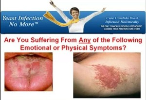 Yeast-Infection-No-More-review