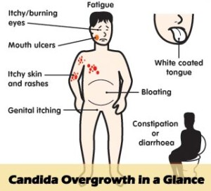 candida-overgrowth-in-a-glance