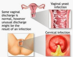 foods that cause yeast infections