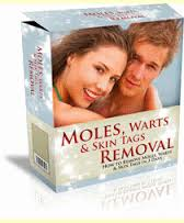 Moles, Warts and Skin tags removal guide